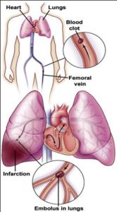 pulmonary-embolism-pe