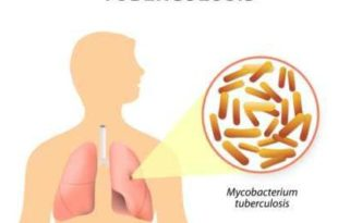 Diagnosis and Treatment of Tuberculosis