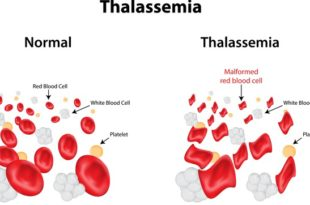 Children With β-Thalassemia Major