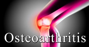Osteoarthritis of the Knee Patient Case Study Solution