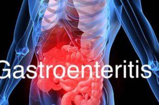 Gastroenteritis at a University in Texas EPI Ready Case Analysis