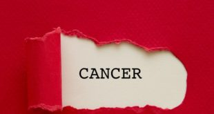 Breast Cancer Case Study Analysis