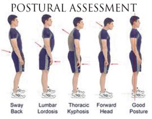 Full Body Postural Assessment Case Study Analysis