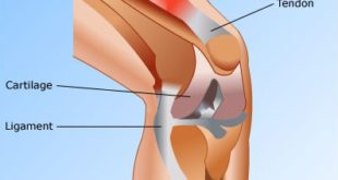 Difference Between Cartilage, Ligaments and Tendons