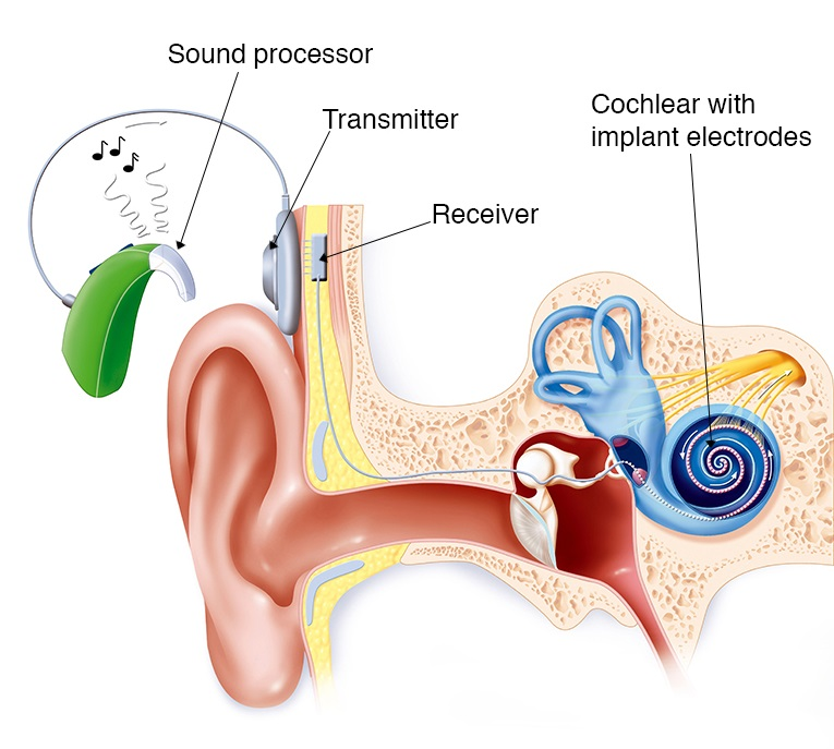 Cochlear Implant Treatment