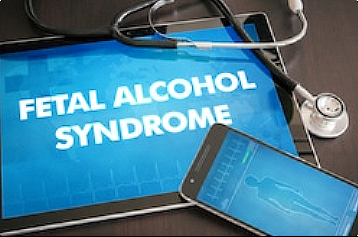 Alcohol Fetal Syndrome and Psychological Effects