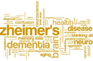 History of Alzheimer's Disease