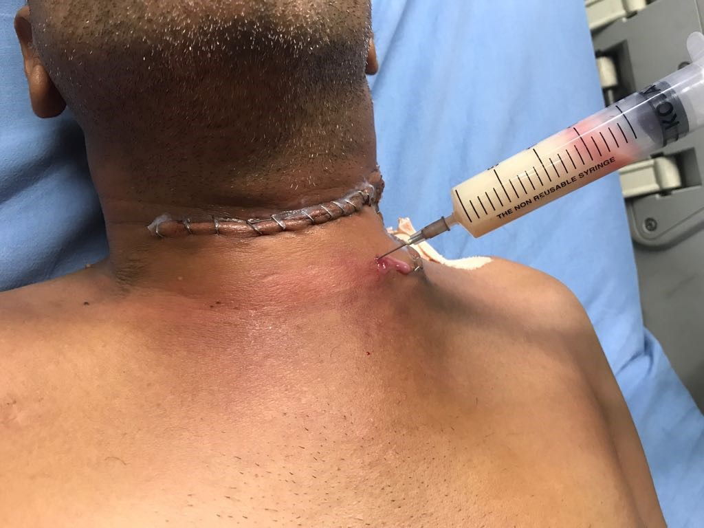Management of Delayed Chyle Leak After Thyroid Cancer Surgery- A Case Report