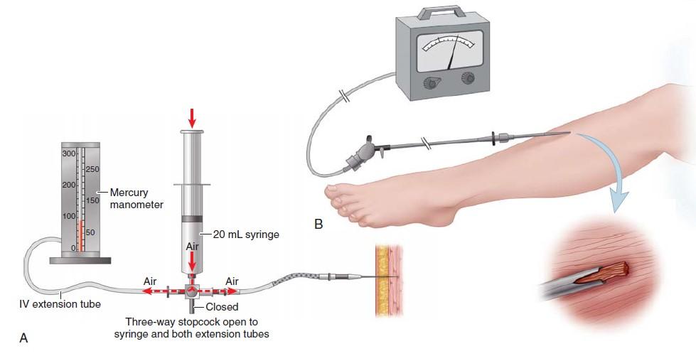 technique used for the determination of tissue pressure